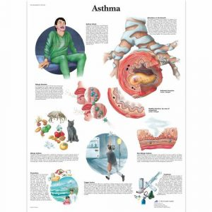 Asthma and Allergies Education