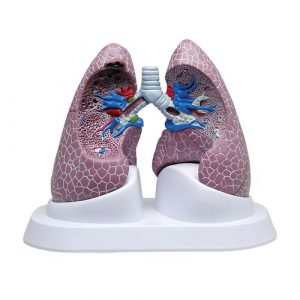 Lung Models